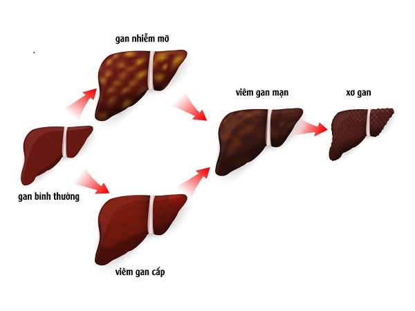 Tìm hiểu về hội chứng suy tế bào gan 01