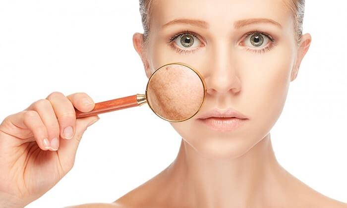 các vấn đề về chăm sóc da mặt
