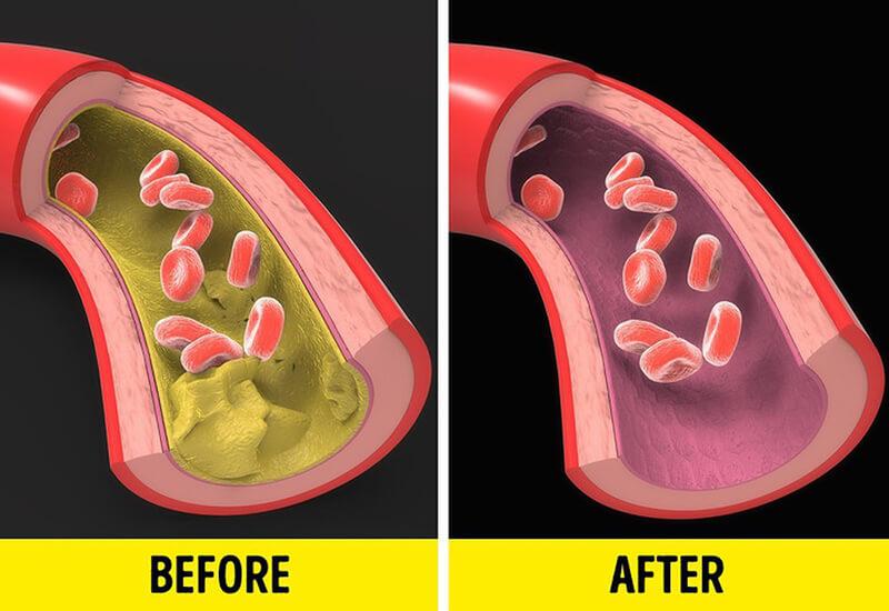 omega-3 giúp giảm đáng kể lượng mỡ trong gan
