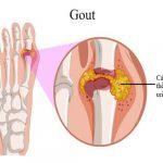 Trị gout