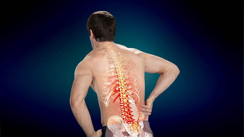 Nếu bị va chạm mạnh vào vùng lưng hoặc té ngã thì các bạn cũng có khả năng bị thoát vị đĩa đệm.