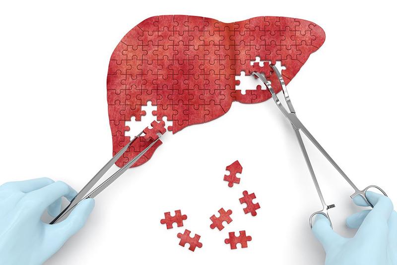 Hiện nay có nhiều phương pháp điều trị xơ gan hiệu quả