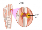 Nguyên nhân và cách trị gout ai cũng cần phải biết